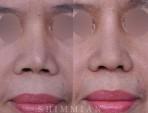 鼻整形再手术 | 硅胶再手术