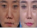 挛缩鼻 | 挛缩鼻手术