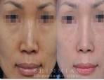 其他手术 | 隆鼻术