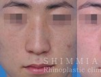 鼻整形副作用