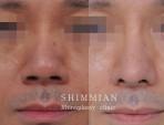 Big nose reduction.