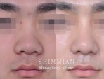 Cosmetic surgery | Higher nose