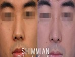 Crooked Nose | Rhinoplasty for crooked and witch's nose