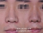 [Hooked nose] Hooked Nose and Uneven Nostril Correction Surgery