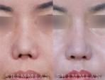 Calibration of the Depressed Nose Pillar caused by Build Nose