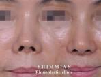 Hidung yang Dibangun | Pembenaran Hidung yang Dibangun