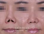 Revisi hidung kontraksi