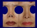 Koreksi Hidung yang Mengkerut