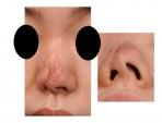 Hidung yang Cacat dikarenakan Kecelakaan