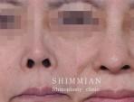 鼻孔下げる手術