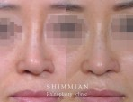 鼻孔非対称の矯正