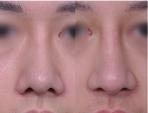 ジョン・ドンハク院長/長い鼻翼の矯正