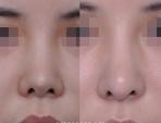 美容鼻手術・鼻筋を伸ばす手術