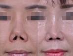 拘縮した鼻